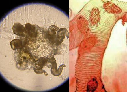 Стерностомоз (трахейный клещ)